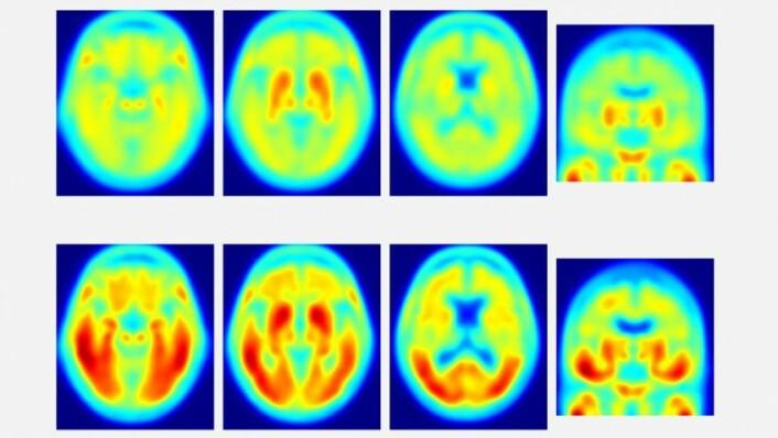 Disse tau-PET-bildene ble offentliggjort av demensforskere ved Washington University i St. Louis i Missouri tidligere i år. De øverste bildene viser svært lite tau-protein hos friske mennesker som ble undersøkt. De nederste bildene viser tau i hjernen til pasienter som har milde symptomer på demens. I denne amerikanske studien ble det slått fast at dess mer tau-protein forskerne så på skannerbildene sine, dess større problemer hadde vedkommende person med å svare riktig i tester av hukommelse og oppmerksomhet.