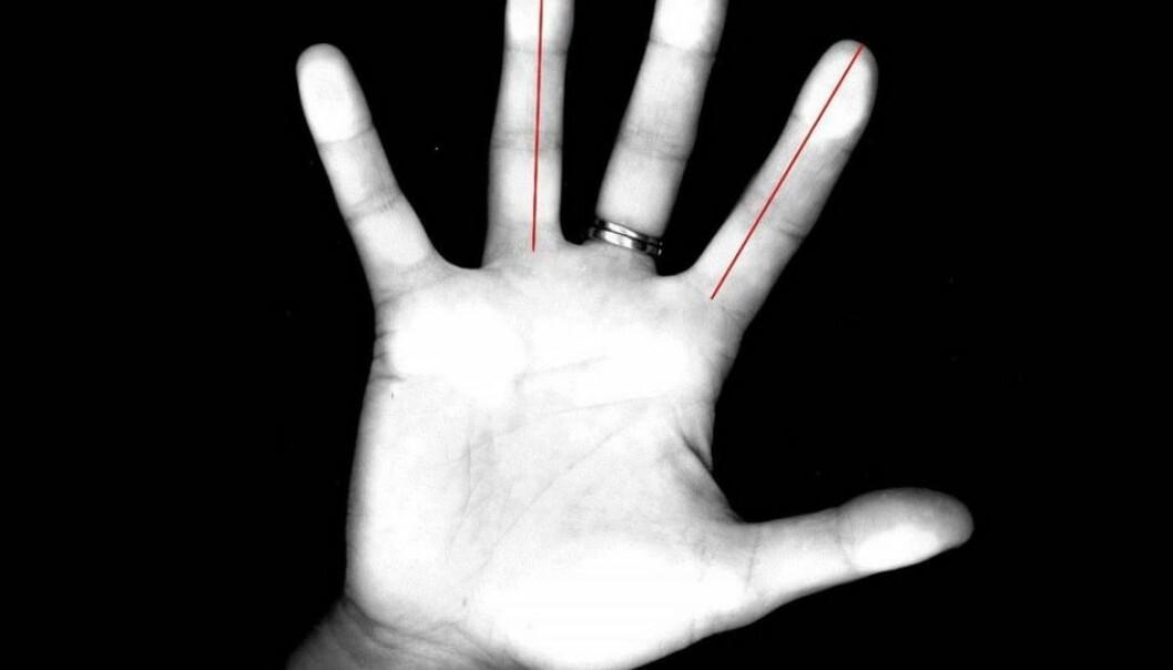 Med en vanlig kopieringsmaskin ble lengden på fingrene til 42 kvinner undersøkt. Halvparten av kvinnene måtte løse ulike mentale oppgaver etter at de hadde fått en dråpe testosteron. Målet var å finne ut hvordan hjernen til menn og kvinner fungerer, og hva fingerlengde og nivå av testosteron betyr.  (Foto: Carl Pintzka / Kolbjørn Skarpnes, NTNU)