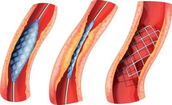 En stent brukes for å hjelpe tette blodårer rundt hjertet å holde seg åpne. Når stenten settes inn blåses blodåra opp med en ballong først, før en metallstent eller en medikamentstent settes inn. (Foto: (Figur: Colourbox))