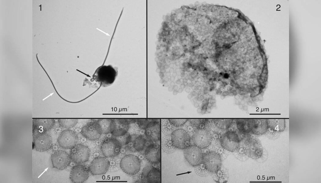 Bilde av Chrysochromulina leadbeateri. Bilde 1 viser hele algen, de andre er nærbilder av ulike deler av den. Denne algen er så liten at forskerne må bruke elektronmikroskop for å få detaljbilder av den. (Foto: Wenche Eikrem og Antje Hofgaard, Universitet i Oslo (etter avtale))