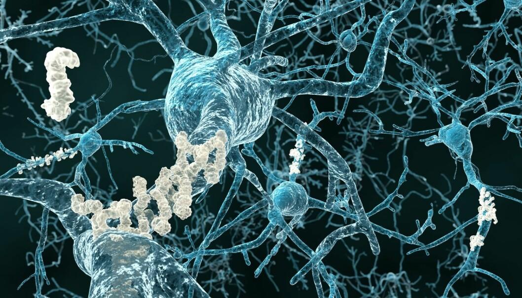 Hjerneceller med plakk.  Juan Gaertner / Shutterstock / NTB scanpix