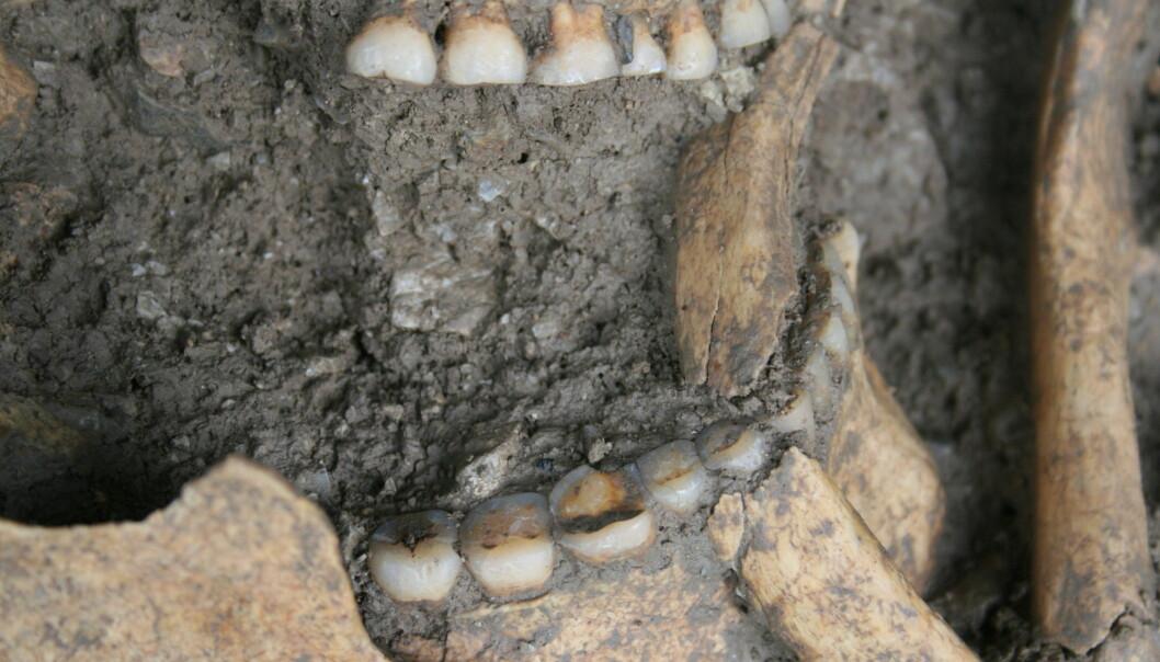 De 8000 år gamle tennene, med kornrester, er godt bevart. (Foto: Dušan Bori)