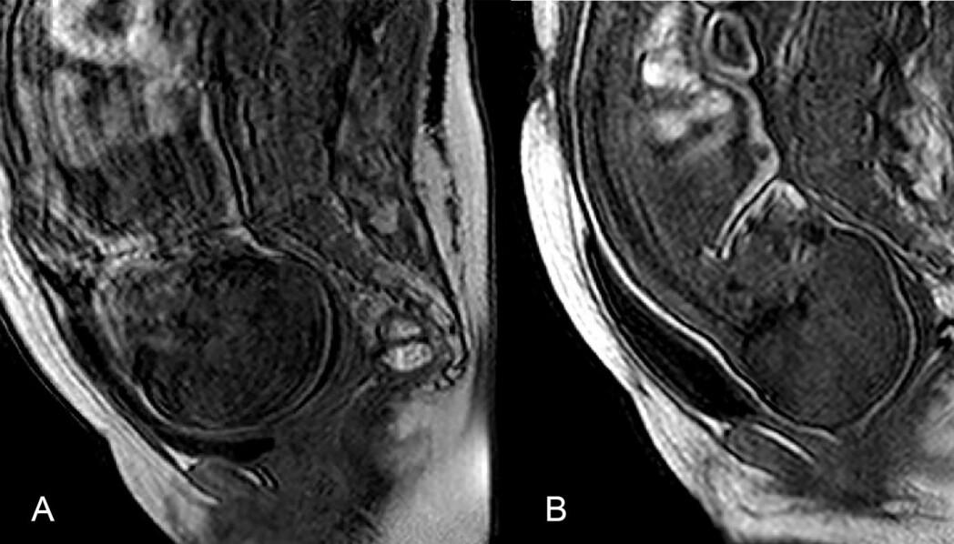 Franske forskere har tatt tredimensjonale bilder for å fange opp hvordan kraniet folder seg sammen under fødsel. (Foto: Ami et al.)