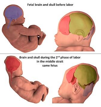 Bildet viser hvordan hodeskalleplatene folder seg under fødsel. (Illustrasjon: Ami et al. )