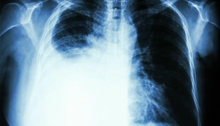 Immunterapi ga lengre liv til lungekreft-pasienter