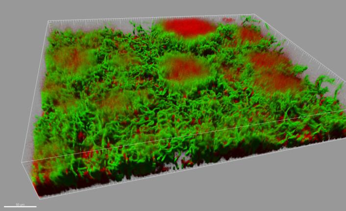 Konfokalmikroskopfoto av en cirka 0,1 millimeter høy biofilm med Bacillus-bakterier. Biofilmen har soppformede strukturer som står opp fra underlaget. Levende celler er vist i grønt, døde i rødt. (Foto: Farmasøytisk institutt, UiO)