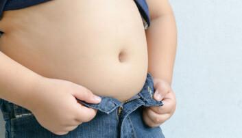 Ifølge forskerne i denne undersøkelsen, handler overvekt blant unge om dårlige matvaner.  (Foto: kwanchai.c, Shutterstock, NTB scanpix)