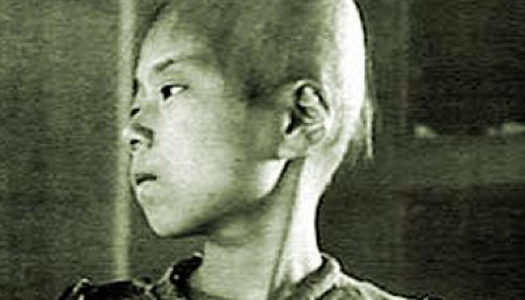 De fleste som døde av atombombene i Hiroshima og Nagasaki, døde med det samme eller få måneder etterpå. Nå viser en artikkel i Genome at langt færre enn fryktet døde av langsiktige strålingsskader. Bildet viser stråleskadet pike fra Hiroshima.  (Foto: US Government)