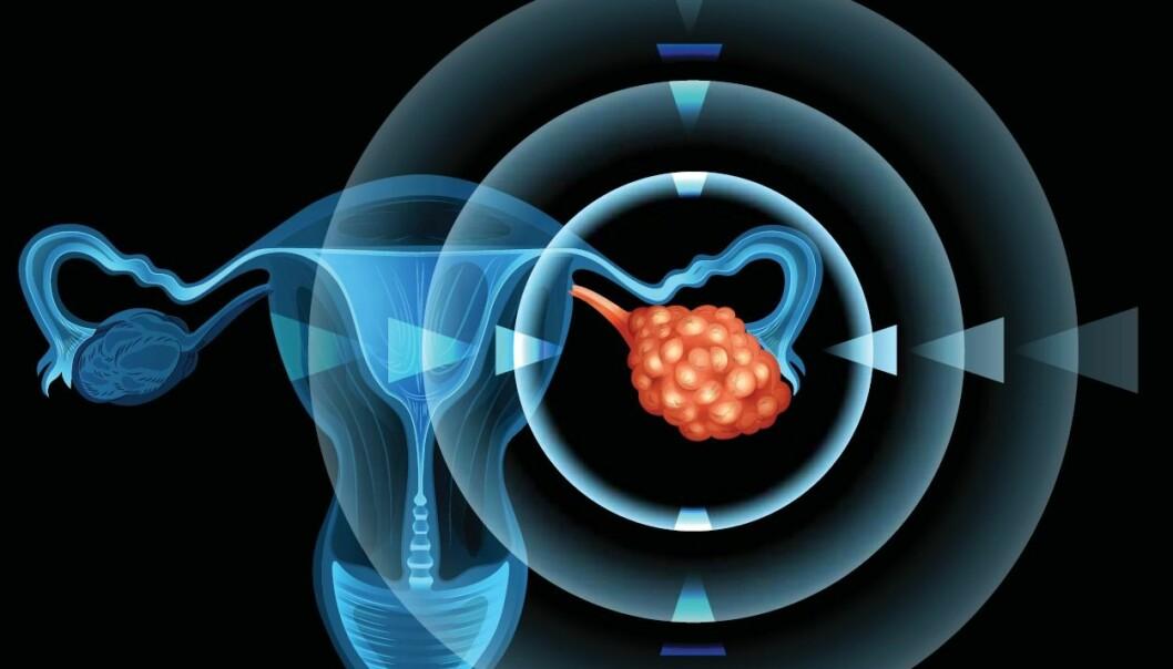 To nye studier peker på mulige virkemidler for å redde flere fra eggstokkreft.  (Foto: Shutterstock /NTB Scanpix)