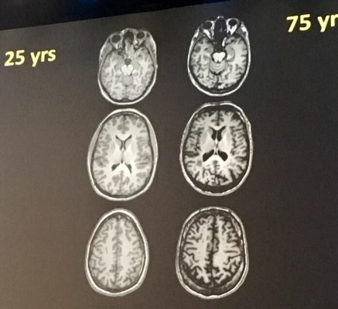Hjernene til venstre tilhører 25-årige personer, mens de til høyre har 75-årige eiere. (Foto: Asta Håberg/NTNU)