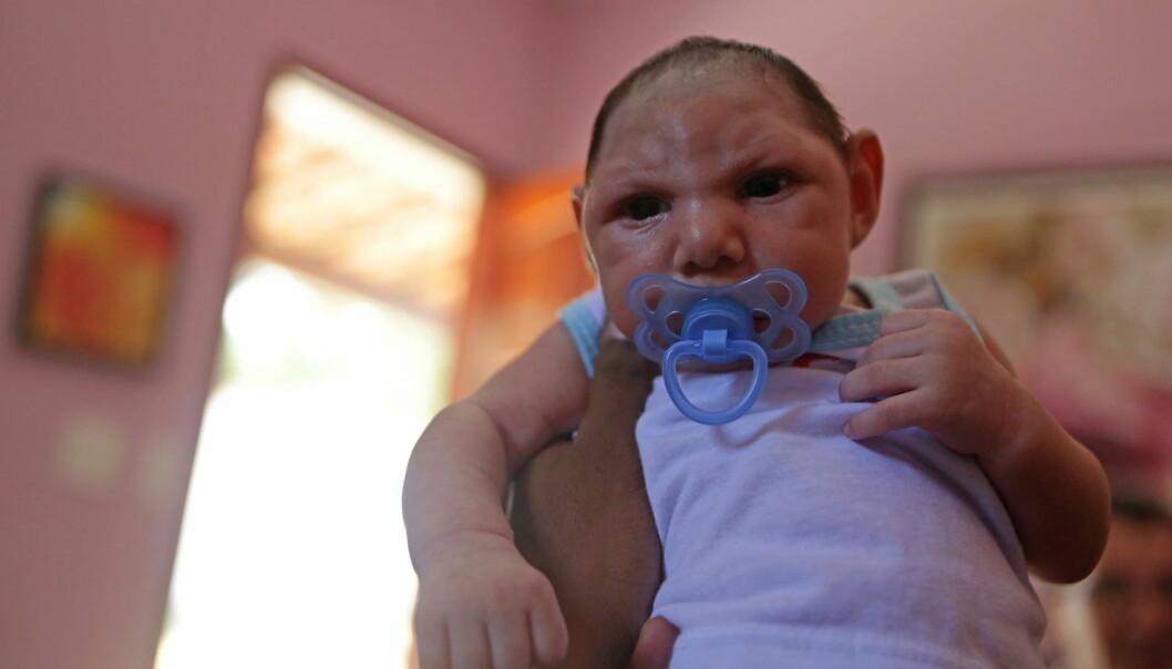 Bildet viser den brasilianske babyen Luiz Philipe i Marica, Rio de Janeiro, som har mikrocefali. Zikavirus mistenkes for å være årsaken.  (Foto: Zuma Press/Scanpix)