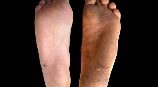 Hard hud er bedre enn sko