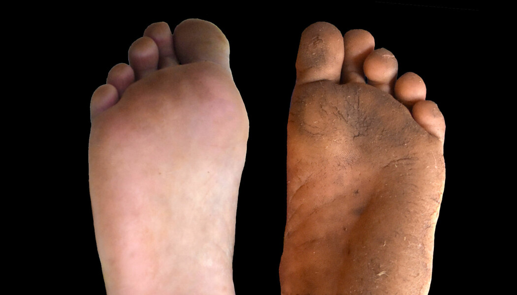 Ingen tvil om hvilken fot som ofte er bar og hvilken som vanligvis har sko på. (Foto: Daniel Lieberman)