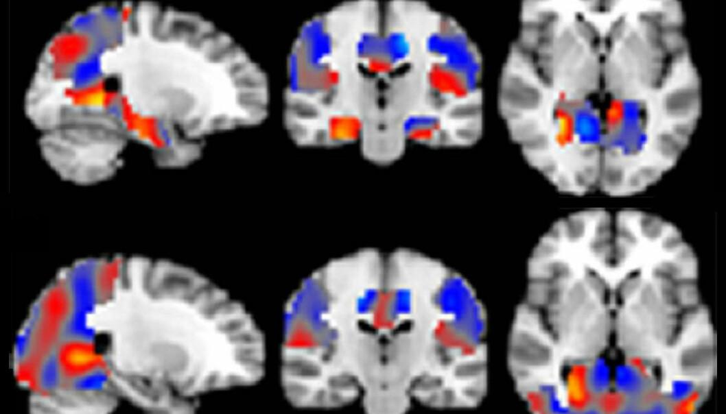 Kunstig intelligens oppdager Alzheimer