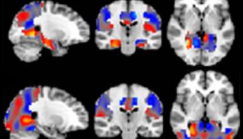 Kunstig intelligens klarer å skille Alzheimer fra andre former for svekkelser i hjernen. Hjerneskanningene er fargekodet av den kunstige intelligensen. Rødt er områder som indikerer Alzheimer. Blått er områder som indikerer mildere og mer alminnelige former for svekkelse. (Figur: Radiological Society of North America)