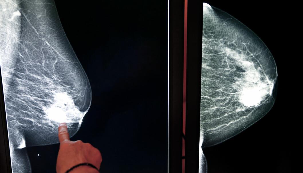 En ny studie antyder at tidstypen din kan påvirke risikoen for brystkreft. Men bare bitte litt. (Foto: Tomas K / Shutterstock / NTB scanpix)