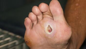 Fotsår er et utbredt problem blant personer med diabetes. Å få et bilde av hvordan såret ser ut gir bedre sårbehandling, ifølge ny forskning. (Foto: ittipon, Shutterstock, NTB scanpix)
