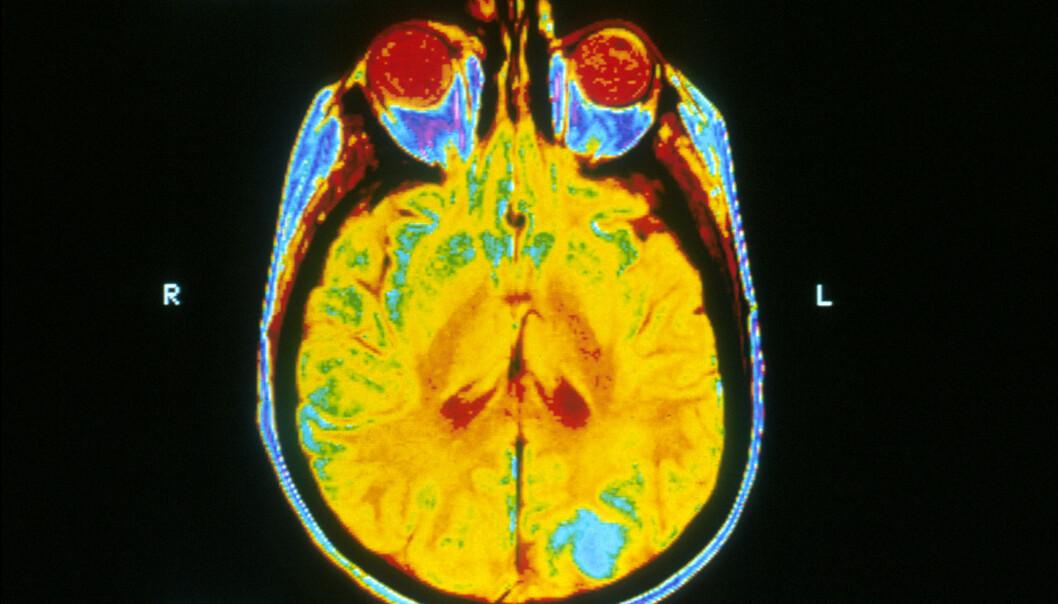 Dette bildet er av en hjerne hvor den blå fargen viser hjernekreft. Det tatt med MRI-maskin (magnetic resonance imaging).  (Foto: National Cancer Institute/Wikimedia)