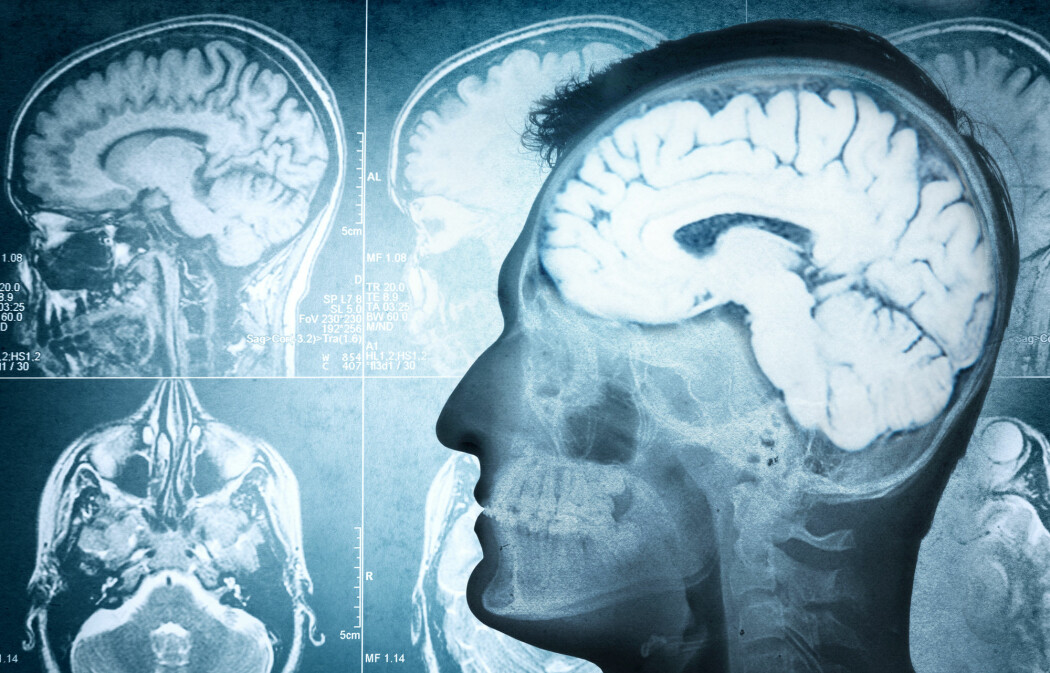 Målinger av spinalvæskens gjennomstrømming i hjernen, viser at pusten påvirker vel så mye som hjerteslag, ifølge ny, norsk hjernestudie. (Foto: Shutterstock)