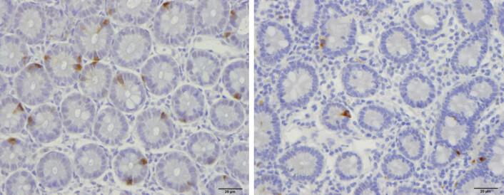 Bildet viser at prøven fra en frisk person (til venstre) har flere endokrine celler enn prøven fra en IBS-pasient. (Foto: Magdy El-Salhy/World Journal of Gastroenterology)