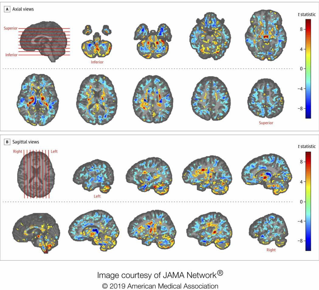 Studien viser forskjeller mellom MR-undersøkelser av diplomatenes hjerner, og en kontrollgruppe. Foto: American Medical Association via AP / NTB scanpix