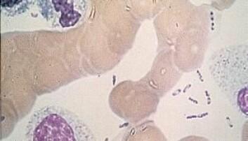 Pestbakterien sett i mikroskop: Den har en karakteristisk form som minner om en sikkerhetsnål. (Foto: U.S. Center for Disease Control, Wikimedia Commons).