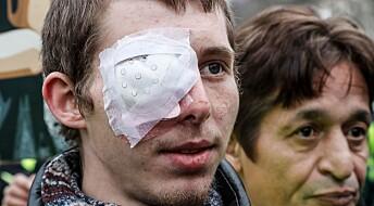 Slik skader gummikuler ansiktet til demonstranter