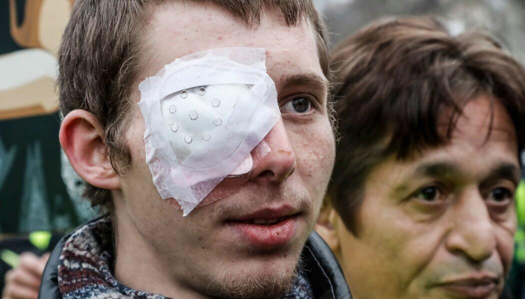 Franck Didron sier han ble skutt i øyet med en gummikule under en demonstrasjon i Paris i desember i fjor. 20-åringen mistet synet på det høyre øyet. (Foto: Francois Guillot/AFP/NTB scanpix)