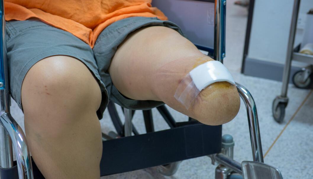 Bildet viser en pasient med diabetes som har måttet amputere beinet. (Foto: Shutterstock).