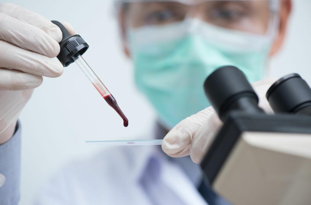 Nye tester er utviklet som gjør at man ved hjelp av en blodprøve kan se om pasienten er i et tidlig stadium av Alzheimers sykdom. (Foto: Shutterstock)