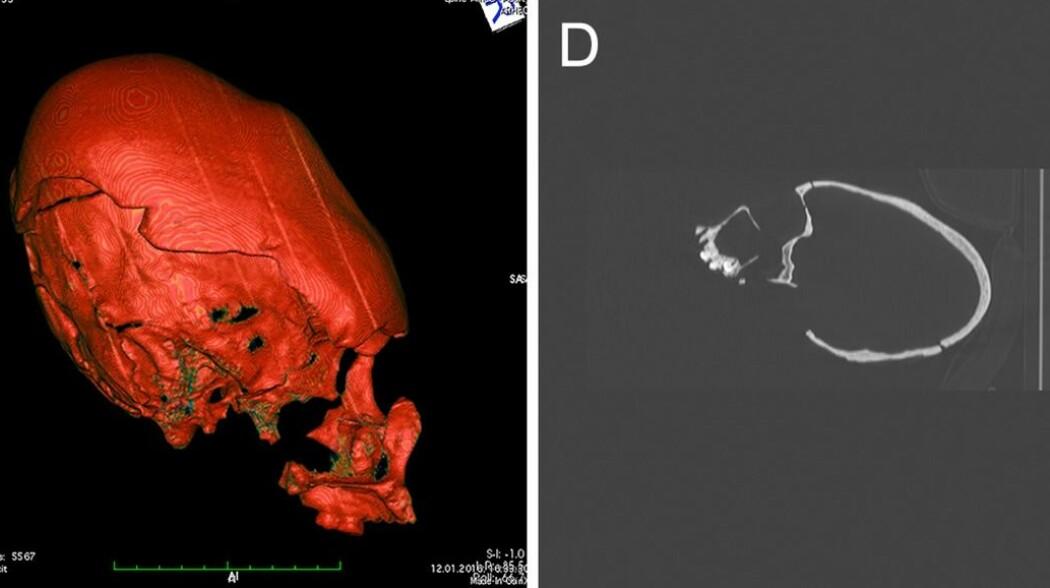 CT-skanninger av hodeskallene viser hvor deformerte de er. (Bilde: Fernandes, D. m.fl / Plos One)