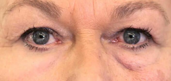 Huden under øyet til venstre i bildet er påført den kunstige huden. Huden under øyet til høyre er ubehandlet. (Foto: Robert Langer)