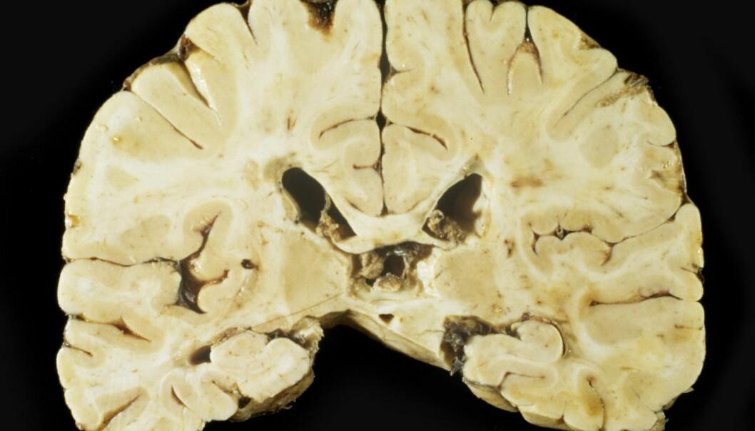 En ny type mitokondrier i hjernen
