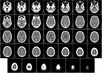 Funn fra en stor undersøkelse viser at 1 av 25 biomedisinske forskningsartikler bruker det samme bildet til å beskrive ulike eksperimenter, ifølge Nature. (Foto: Wikipedia)
