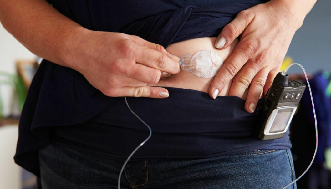 Å måle blodsukker og regne ut hvor mye insulin du trenger, kan bli helt unødvendig i framtiden. Flere forskningsmiljøer jobber for å utvikle en kunstig bukspyttkjertel som gjør alt for deg.  (Illustrasjonsfoto: Monkey Business Images/Shutterstock/NTB scanpix.)