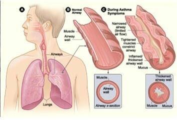 Mange samlestudier har vist økt risiko for luftveisplager og sykdommer hos de som bor i fuktskadde boliger. Illustrasjonen viser astma. (Foto: (Illustrasjon: FHI))