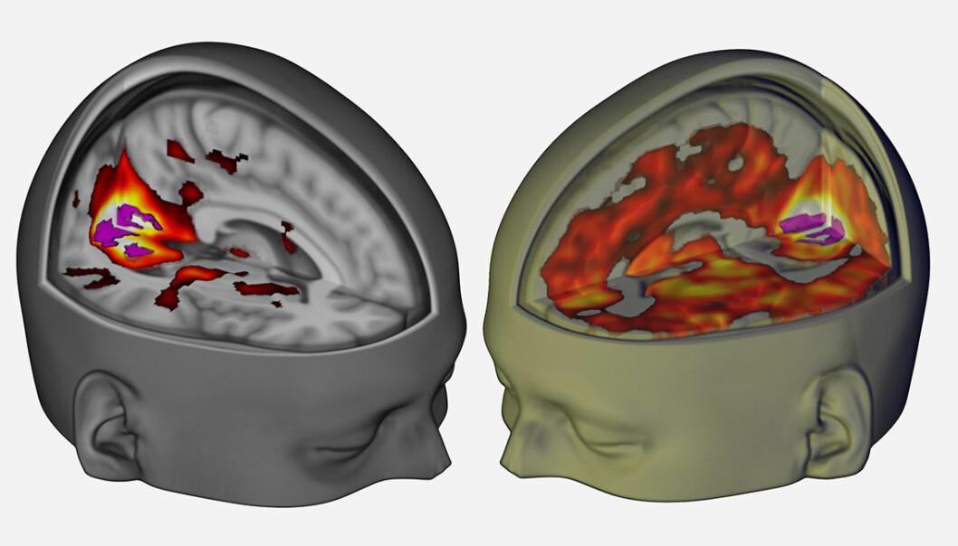 Mye mer av hjernen bidrar til synsopplevelser med LSD, som vist i bildet av forsøksperson med lukkede øyne til høyre. Forskere har nå for første gang brukt moderne skannemetoder til å undersøke hvordan hjerneaktiviteten påvirkes av LSD. (Figur: Imperial College London/Robin Carhart-Harris)