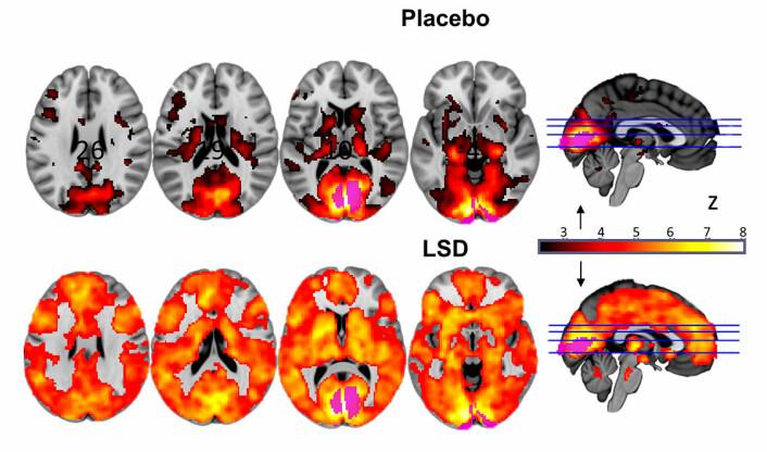Store områder av hjernen lyste opp på hjerneskanninger (nederst) når forsøkspersonene fikk LSD. Øverst er normale hjerneskann fra forsøkspersoner som bare fikk luremedisin, placebo. Begge grupper lukket øynene under forsøkene. (Foto: (Figur: Imperial College London/Robin Carhart-Harris))
