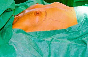 Why women want plastic surgery