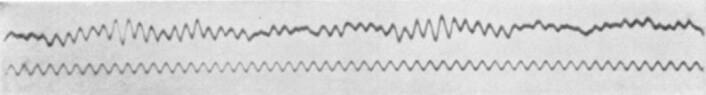 Dette er en av de første målingene med EEG som ble gjennomført av den tyske nevrologen Hans Berger. (Foto: Berger H. Über das Elektrenkephalogramm des Menchen. Archives für Psychiatrie. 1929/Wikimedia commons.)