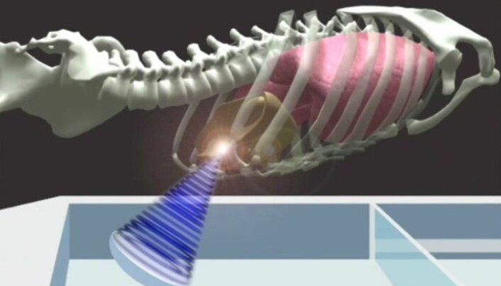 Destroying tumours with ultrasound