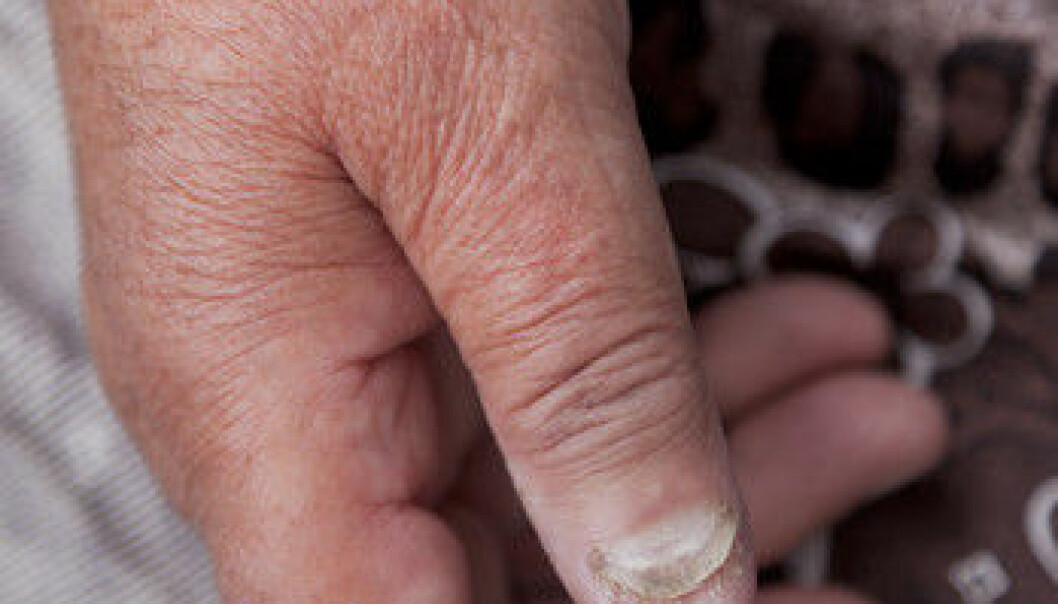 New treatments might be underway for psoriasis and other chronic inflammatory conditions such as rheumatoid arthritis and nephritis. (Illustration photo: Colourbox)