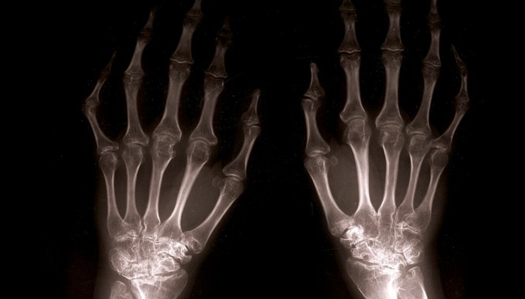 Low bone density can cause weak bones. The wrists in particular can easily fracture. (Illustration photo: Colourbox.com)