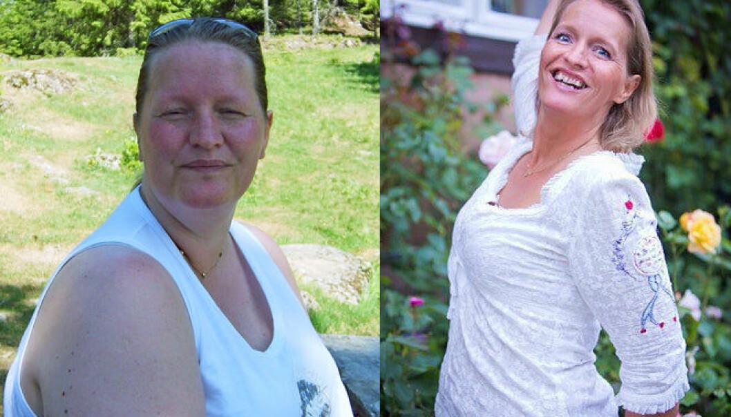 Hege Friberg ble slankeoperert for sju år siden. Det forandret livet hennes, men ikke helt på den måten hun hadde trodd på forhånd. (Foto: privat)