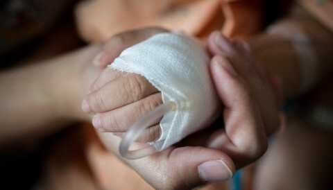 efb4733d2 Flere barn med kreft overlever hvis foreldrene bor sammen