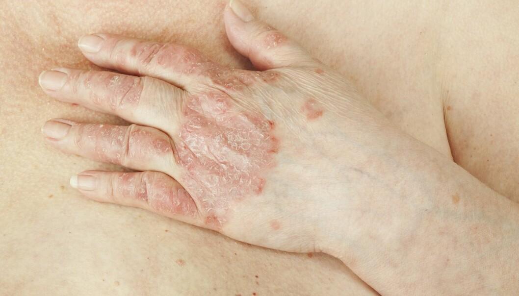 Ved å kombinere data fra 84 000 europeere kunne forskerne peke ut 244 steder i arvematerialet som er knyttet til fem autoimmune sykdommer: Crohns, PSC, Ulcerøs kolitt, psoriasis og Bekhterevs sykdom. (Foto: Shutterstock, NTB Scanpix)
