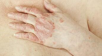 Genstudie viser sammenheng mellom fem ulike sykdommer