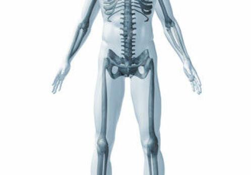 When bone-eating cells gain the upper hand