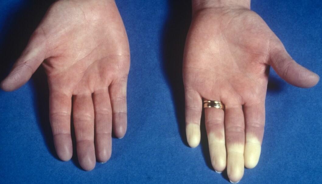 Ved Raynauds fenomen vil fingertemperaturen raskt synke fordi blodforsyningen til fingrene blir redusert når det blir kaldt. (Foto: Science Photo Library/NTB scanpix)