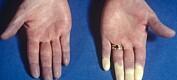 Spør en forsker: Hvorfor får noen hvite fingre når det er kaldt?